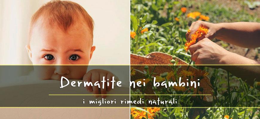 dermatite bambini rimedi naturali
